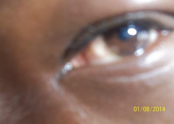 After (healthy eyes)