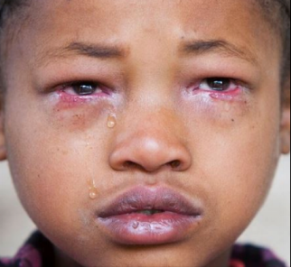 Boy with Trachoma.png