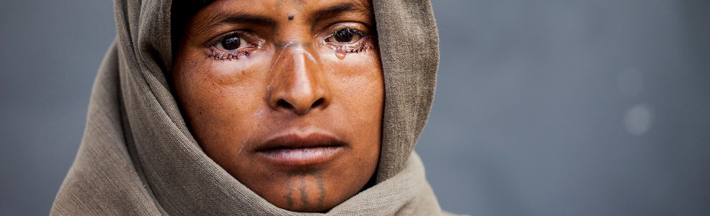 Post-Trachoma Surgery