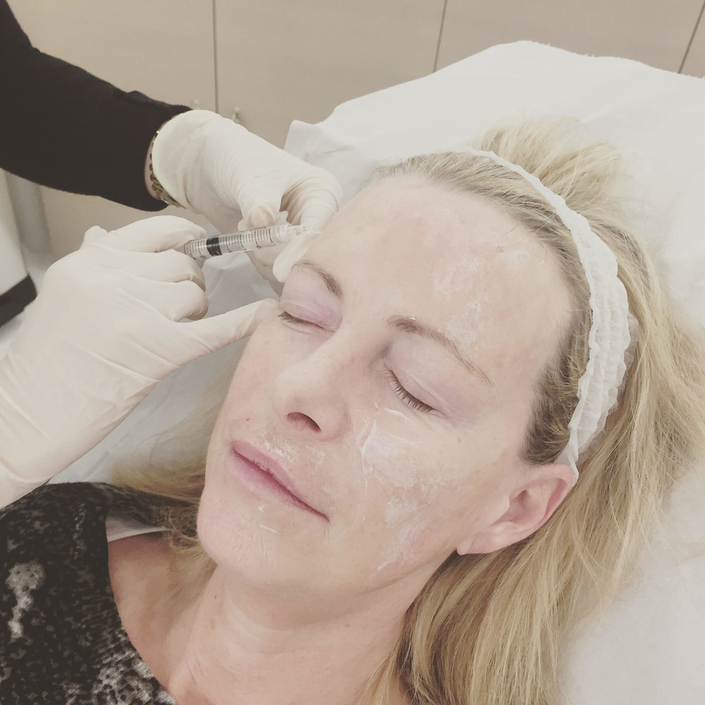 Is Mesotherapy Your Answer To Glowing Skin?