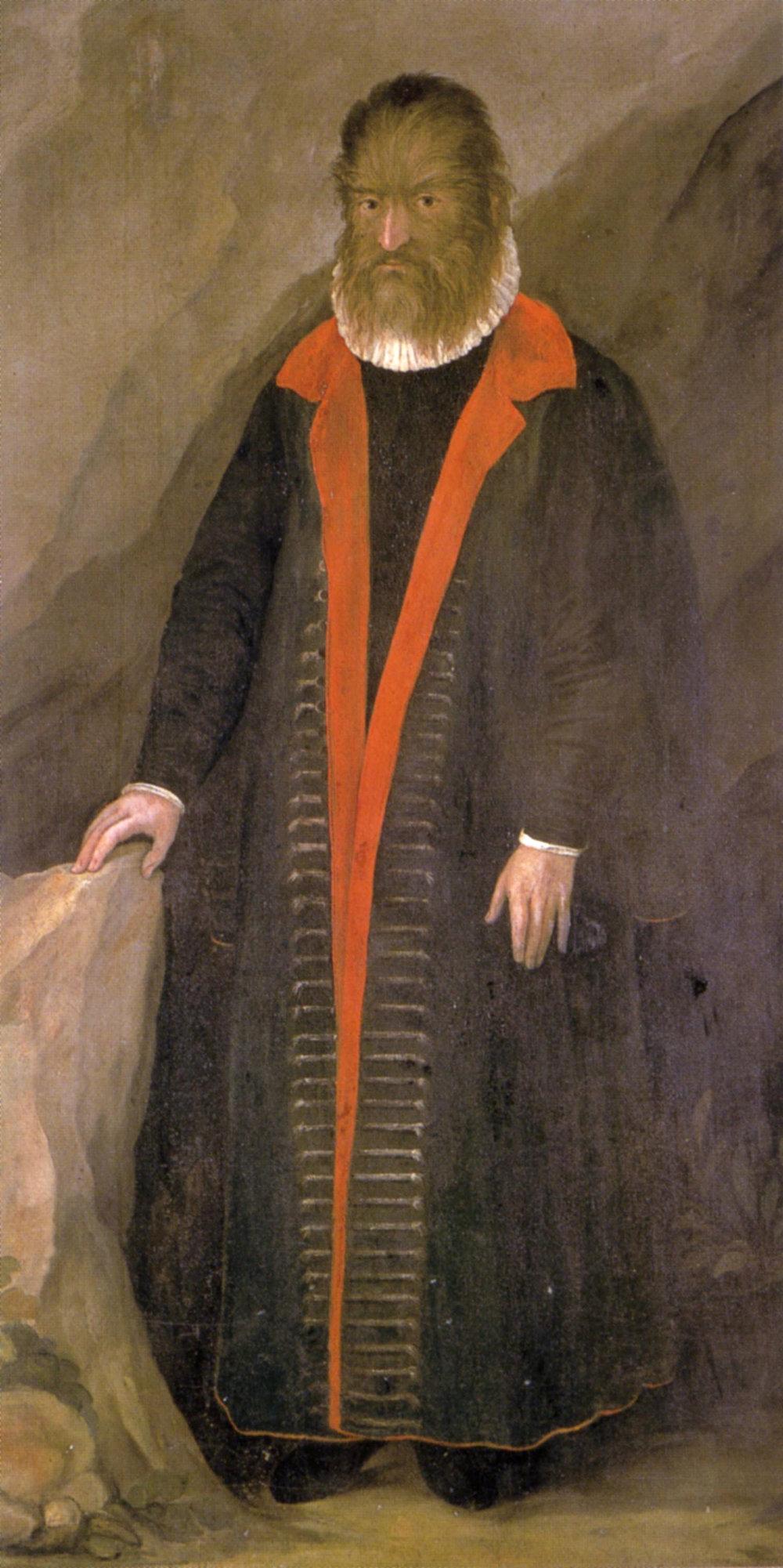 В 16 веке при дворе французского монарха Генриха II жил Петрус Гонсалвус. Он родился на острове Тенерифе