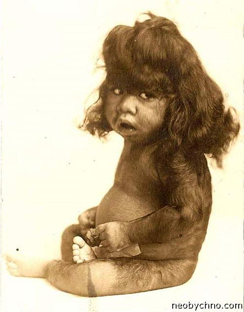 Перцилла Лаутер была известна под многими именами. Сначала как «косматая маленькая девочка», затем как «девушка-обезьянка»