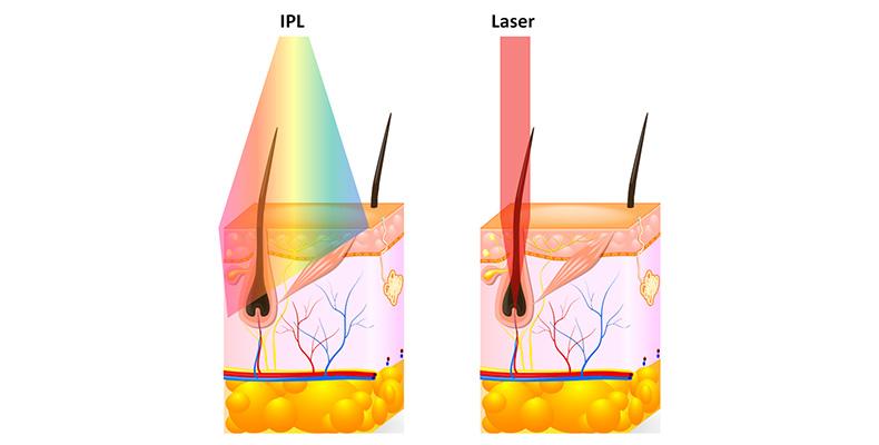 laser-hair-removal-hamilton-laser-vs-ipl-skin-logics.jpg