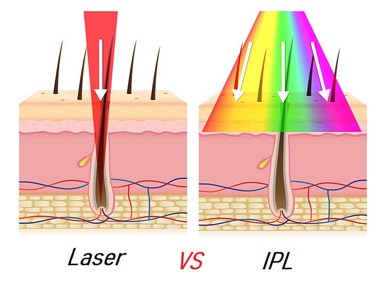 Laser-VS-IPL.png