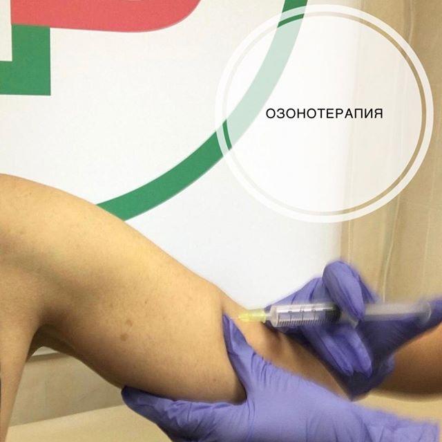 Озон – особый газ, который имеет немало полезных свойств. Изучая свойства озона, ученые отметили его высокую антисептическую активность, способность насыщать ткани кислородом. Именно это и сделало озонотерапию одной из самых популярных процедур в косметологии. ⠀ Показаниями для озонотерапии являются: ⠀ 🔸Сниженный тонус кожи – благодаря насыщению кислородом и стимулирующим свойствам озона улучшается выработка коллагена; 🔸Целлюлит – озонотерапия одно из самых эффективных средств для его устранения; 🔸Купероз – газовая инъекция благоприятно влияет на сосуды; 🔸Акне, угри, воспаления на коже различной этиологии - озон уничтожает все виды болезнетворных микроорганизмов; 🔸Растяжки - озон помогает сделать их менее выраженными. ⠀ Имеются противопоказания. ⠀ Ждём в гости😉 📞Запись по тел.: +7 495 108 64 92 📍Адрес: Москва, ул. Мытная, 52 👣Мы находимся в пешей доступностиот станций метро Октябрьская, Добрынинская, Шаболовская ⏰График работы: 10:00-21:00 ⠀ #брава_клиника #эстетическаямедицинамосква #lpgмосква #контурнаяпластикамосква #лазернаяэпиляциямосква #эпиляциямосква #перманентныймакияжмосква