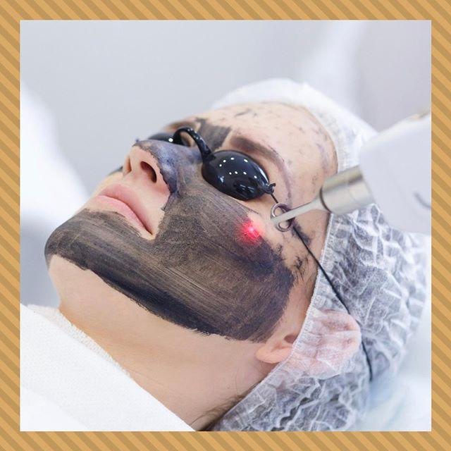 🔸Карбоновый пилинг🔸 ⠀ Наша клиника предлагает много современных косметологических процедур, среди которых карбоновый пилинг имеет заслуженную популярность. Освежить лицо, подтянуть кожу, избавиться от расширенных пор и повышенной жирности, гиперпигментации – все это возможно достичь за несколько сеансов. ⠀ Что называют карбоновым пилингом? Такое название получила процедура, основанная на способности лазерного луча быстро и аккуратно испарять омертвевшие клетки кожи. ⠀ Показаниями для карбонового пилинга являются: 🔸чрезмерное салообразование; 🔸расширенные поры на лице; 🔸акне; 🔸тусклый цвет лица; 🔸мелкие морщины. ⠀ Неофициальное название процедуры – «голливудская чистка». Мягкое и аккуратное действие на кожу, безопасность, комфортность сеанса и видимый результат уже после первой чистки – свое название процедура получила не зря. ⠀ В отличие от иных пилингов, карбоновый безболезненный, максимум, что может ощущать клиент – небольшое пощипывание. Его можно проводить в любое время года, и сразу после сеанса можно вернуться к обычному ритму жизни. ⠀ 📞Запись по тел.: +7 495 108 64 92 📍Адрес: Москва, ул. Мытная, 52 👣Мы находимся в пешей доступностиот станций метро Октябрьская, Добрынинская, Шаболовская ⏰График работы: 10:00-21:00 ⠀ #брава_клиника #эстетическаямедицинамосква #lpgмосква #контурнаяпластикамосква #лазернаяэпиляциямосква #эпиляциямосква #перманентныймакияжмосква #имиджклиника #чисткалицамосква