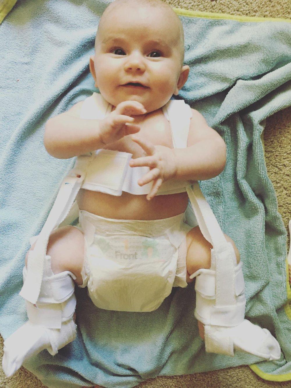 gwen hip dysplasia pavlic harness