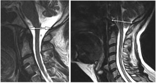 Fig. 7a. (L) MRI Depicting Normal Cerebellar Position Fig 7b. (R) MRI Depicting Abnormal -Chiari= Cerebellar Position