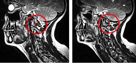 Figure 14a. Sagittal Atlas Misalignment (Left), Figure 14b. Normal Misalignment (Right)