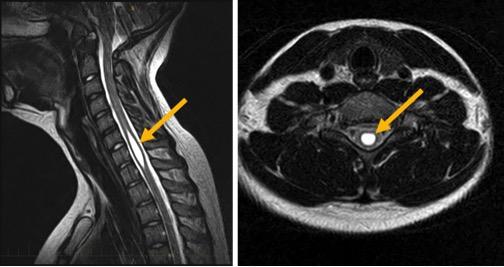 Figure 16a. Sagittal MRI Showing Syrinx (Left); Figure 16b. Axial MRI Syrinx
