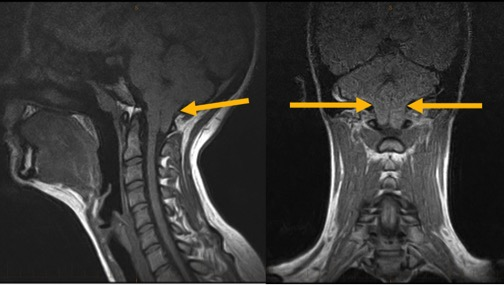 Figure 17 22mm Chiari in a 19-Year-Old Female Patient  Sagittal View (Left), Coronal View (Right)
