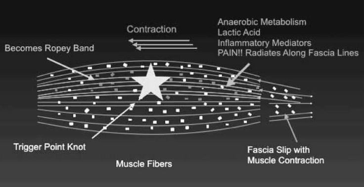 Figure 5: Fascia slip leads to formation of trigger point and ropey band, followed by anaerobic metabolism and pain. Dots are interstitial nerves, transmitting unpleasant sensations.