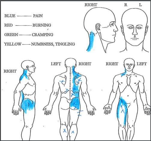 Figure 1.  XX colors blue for pain are all along the right side of her body, neck to lower back and into her right groin and thigh. The x's in the diagram represent the most active of the fascia knots or trigger points in her myofascia. Short horizontal lines represent some of the tendon or enthesis injury detectable on physical examination by noting texture of myofascia.
