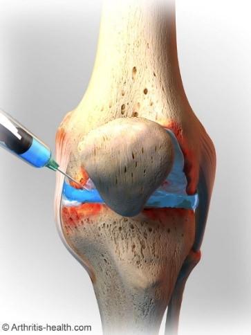 knee injection.jpg