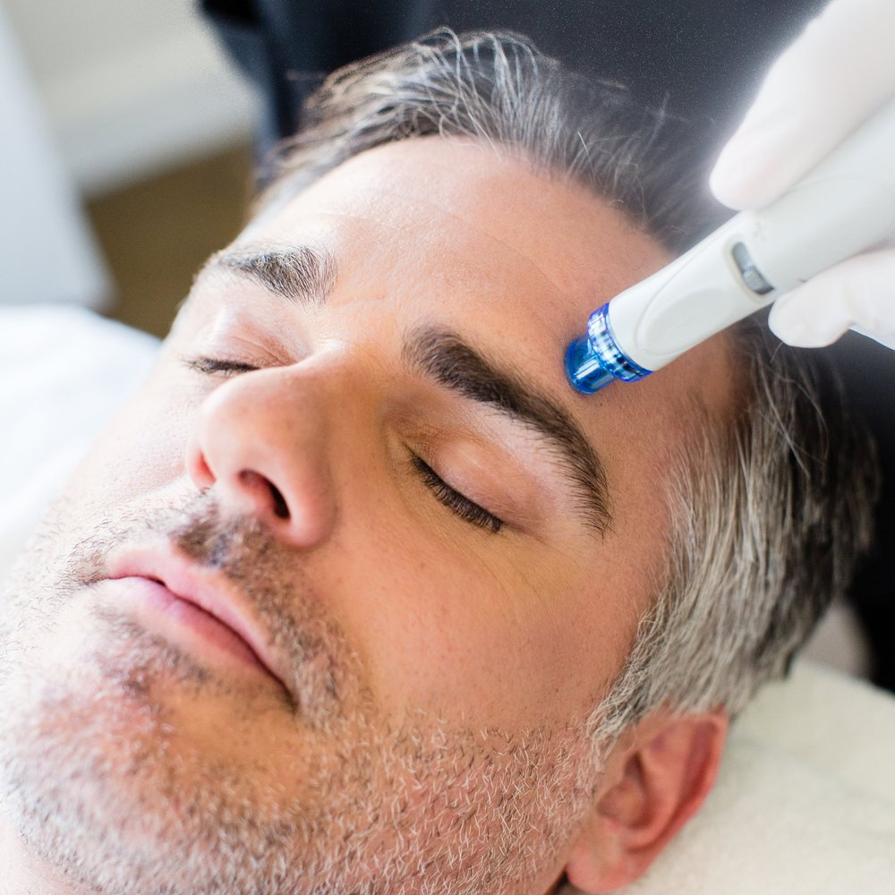 hydrafacial-for-men