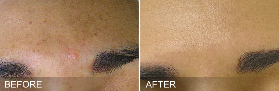 Hydrafacial before and after photo, brown spots
