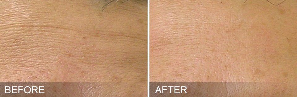 Hydrafacial before and after photos fine lines