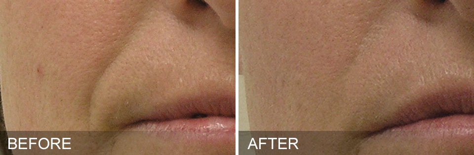 Hydrafacial before and after photos nasolabial folds