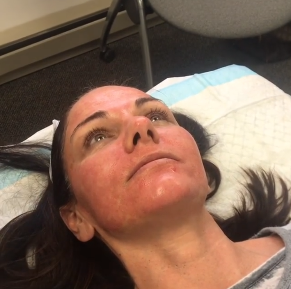 Our patient (with permission) with normal pink/red glow just minutes after microneedling.