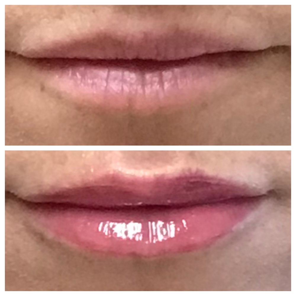 Face Forward Medical Aesthetics med spa offers lip filler in Lexington MA including juvederm, restylane, sculpsure, volbella, volluma, and more.