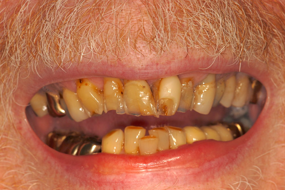 Broken teeth ill fitting restorations before