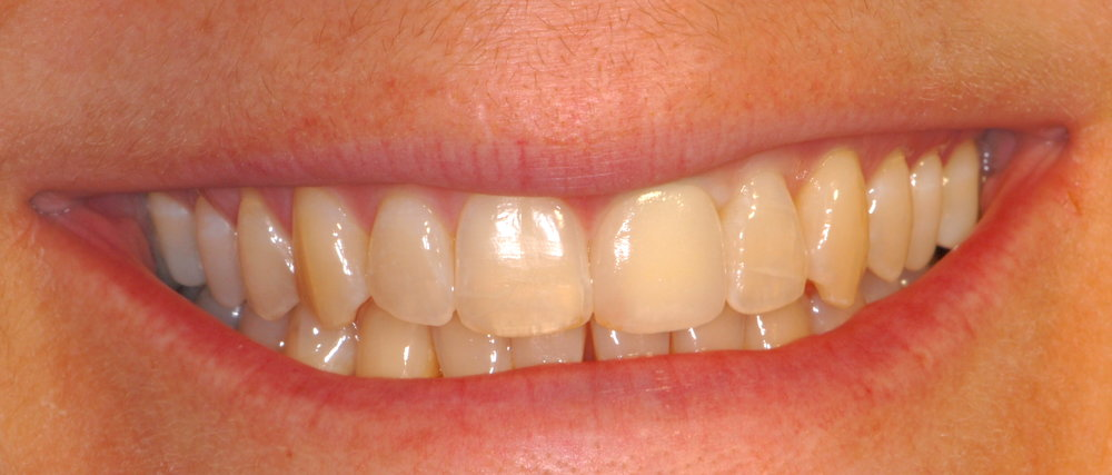 New all ceramic crown after orthodontic treament