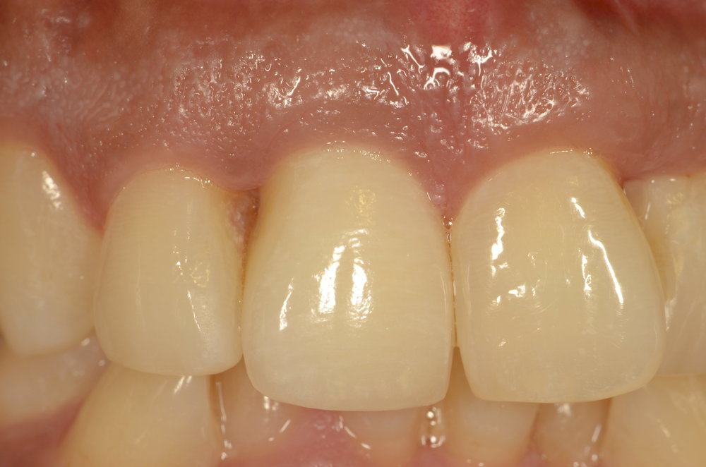 New porcelain fused to metal crown after gum surgery after