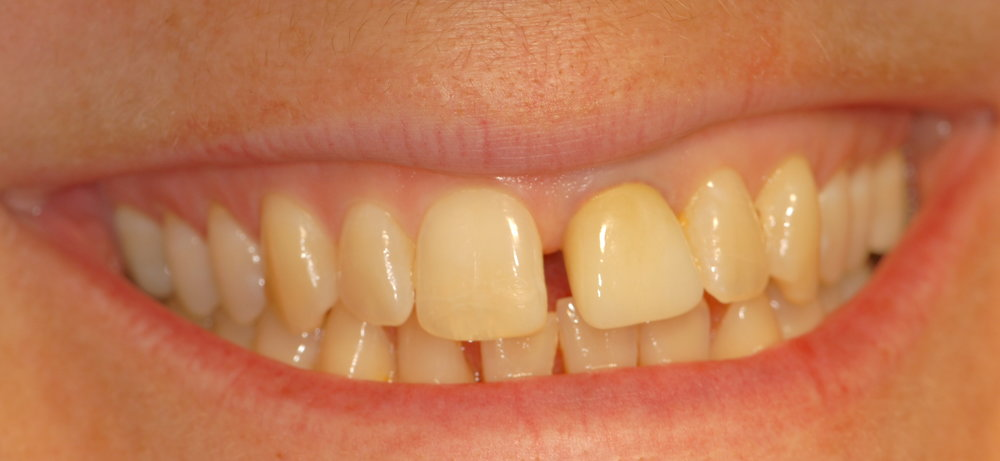 Ill fitting single crown malpositioned teeth