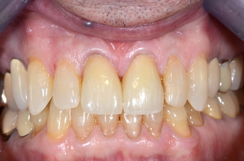 Two new all ceramic crowns after