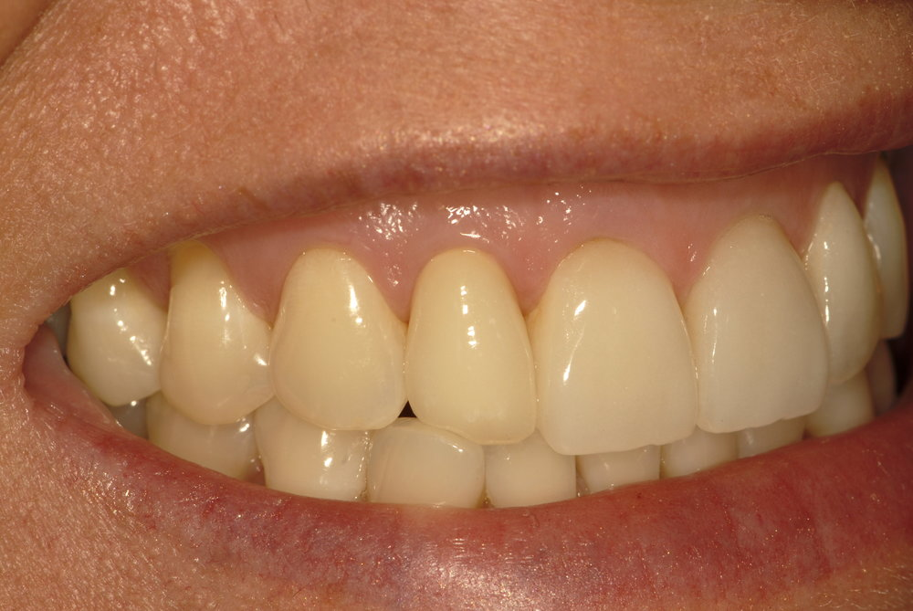 All ceramic crown to match existing veneers after