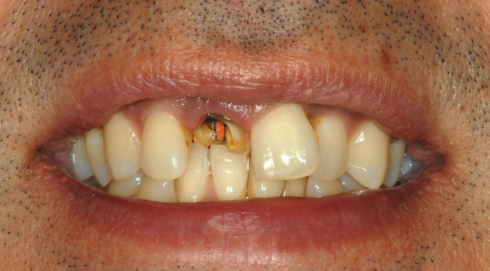 Fractured single teeth old root canal before
