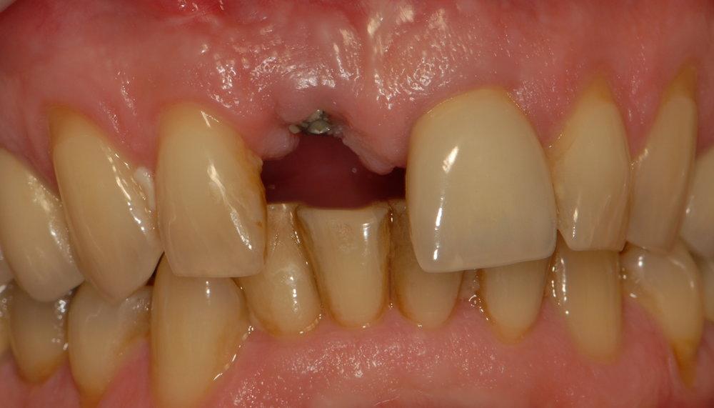 Integrating implant