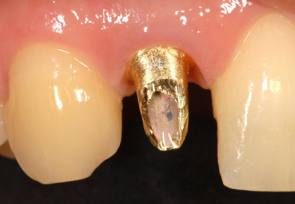Great implant placement gold custom abutment