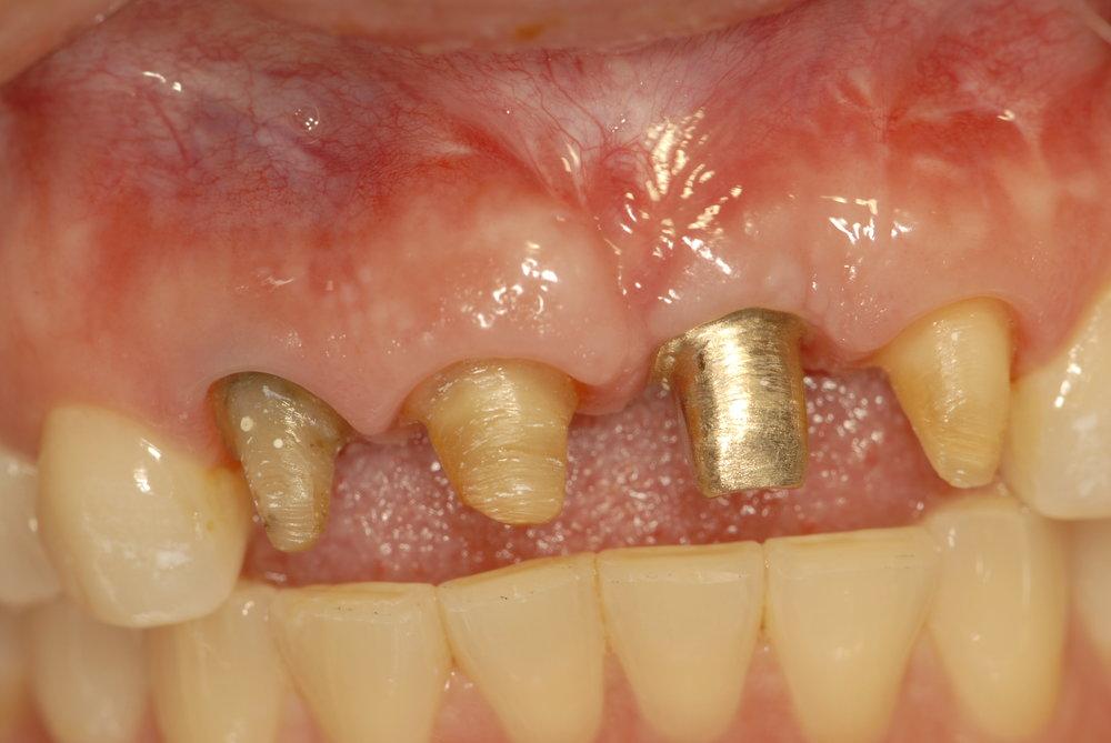 Tooth prep implant prep 2