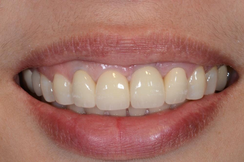 High smile line final crownwork
