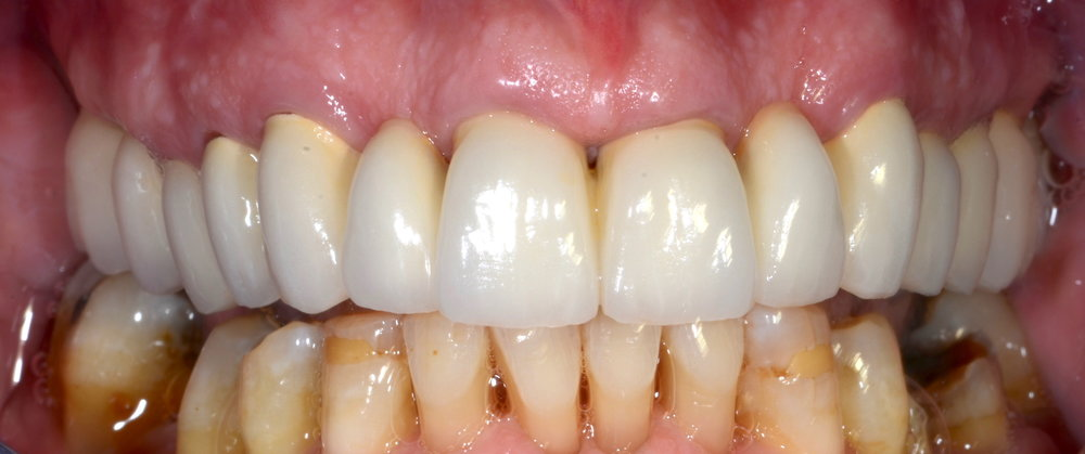 New ceramometal bridges esthetics, health, function restored