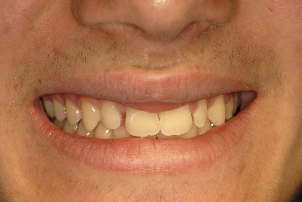 Two misshaped teeth before