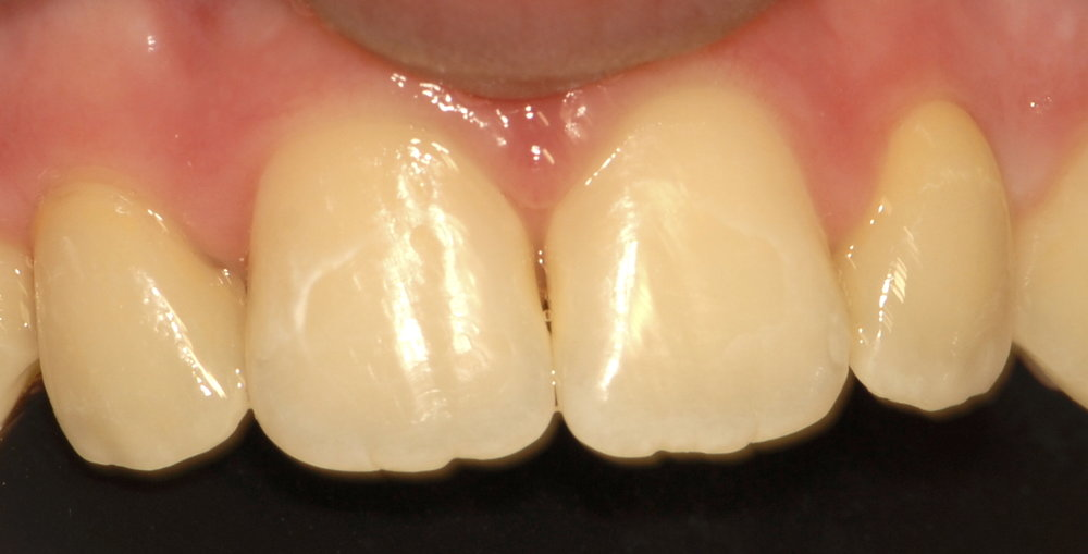 Two porcelain veneers after