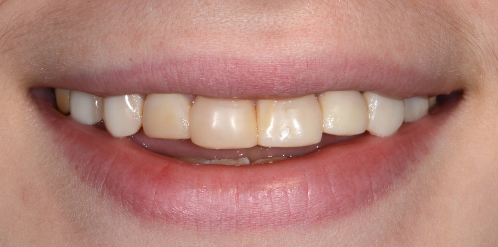 Ill fitting bonding on tetracyclined stained teeth before