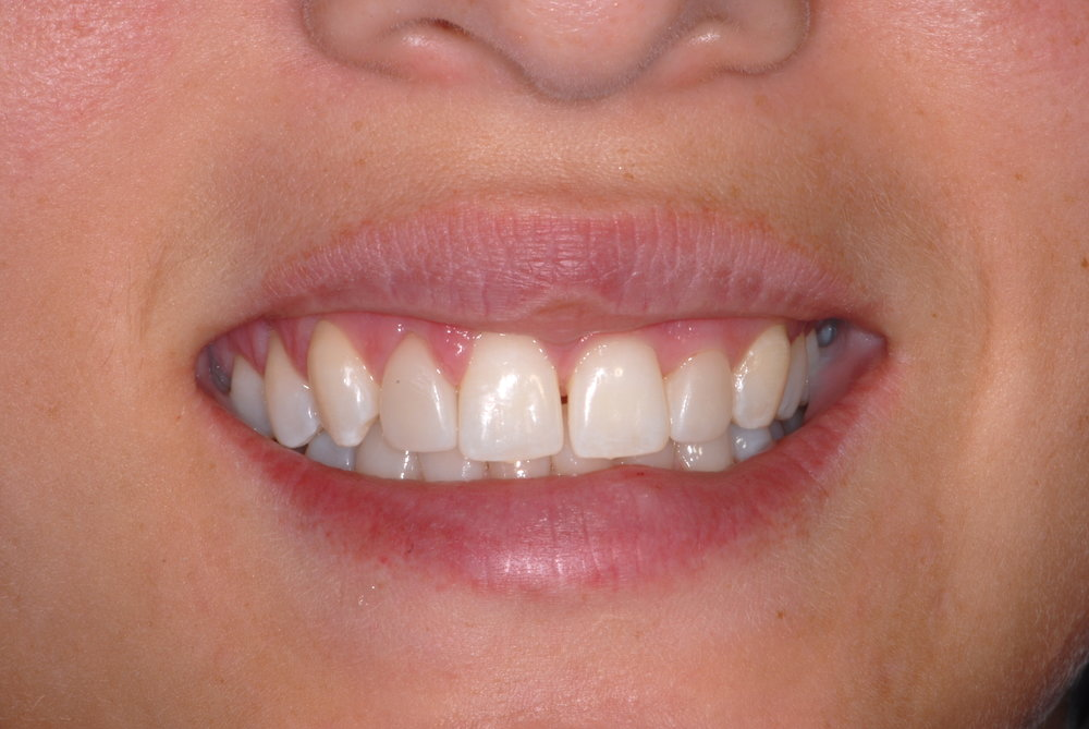 One porcelain veneer