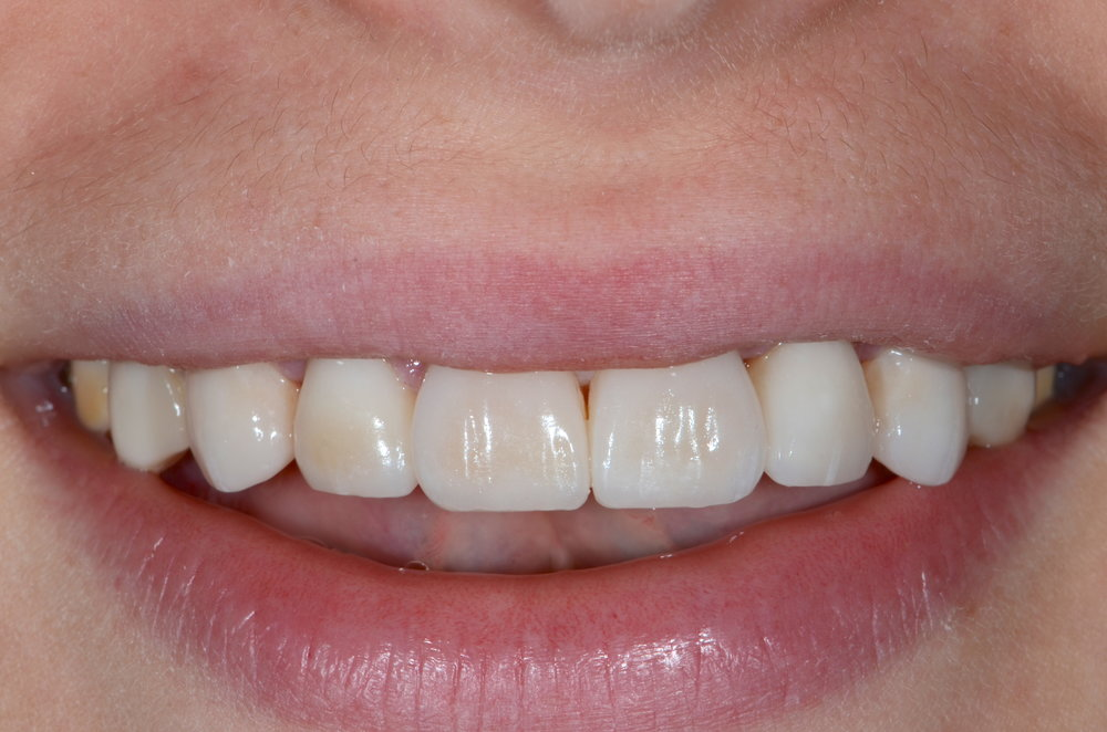 Pretty smile after porcelain veneers