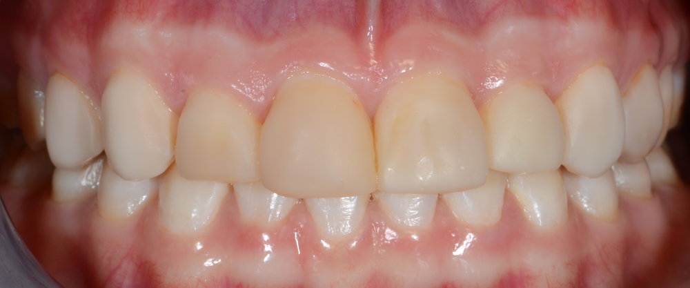 Ill fitting bonding on tetracycline stained teeth before