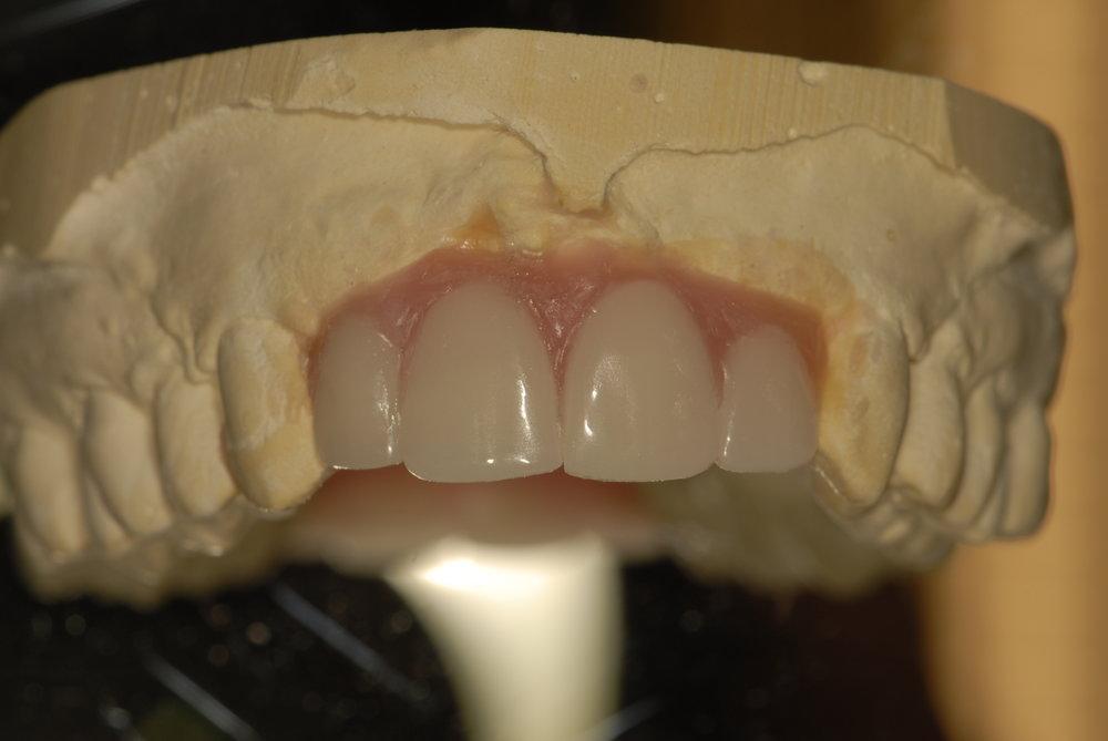 Diagnostic wax up 1