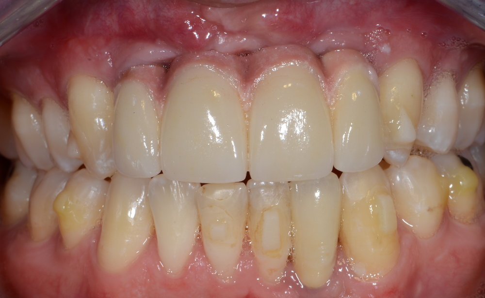 Final crownwork Team dentistry Orthodontics, Oral Surgery, Implants, Prosthodontics
