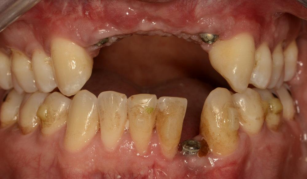 Post bone reconstruction implant placement
