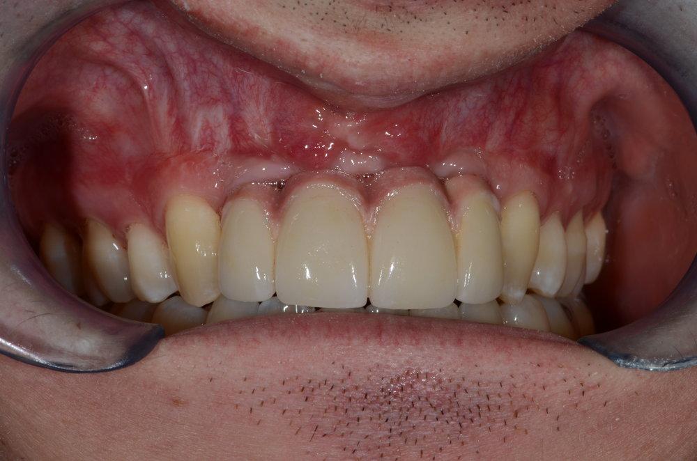 Long lasting results final restorations