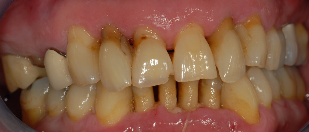 Restoring bite, periodontal therapy