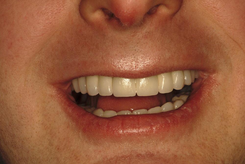 Restoring smile self confidence after 1