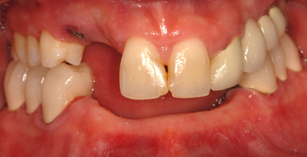 Restoring esthetics, phonetics, and function before 2