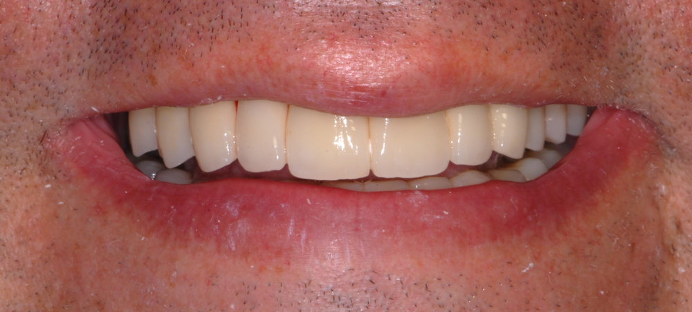Full mouth restoration improved smile and confidence after 1